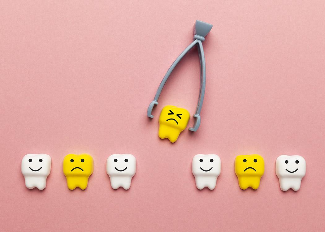 Kalkberg Zahnärzte Bad Segeberg Chirurgie Zahnentfernung