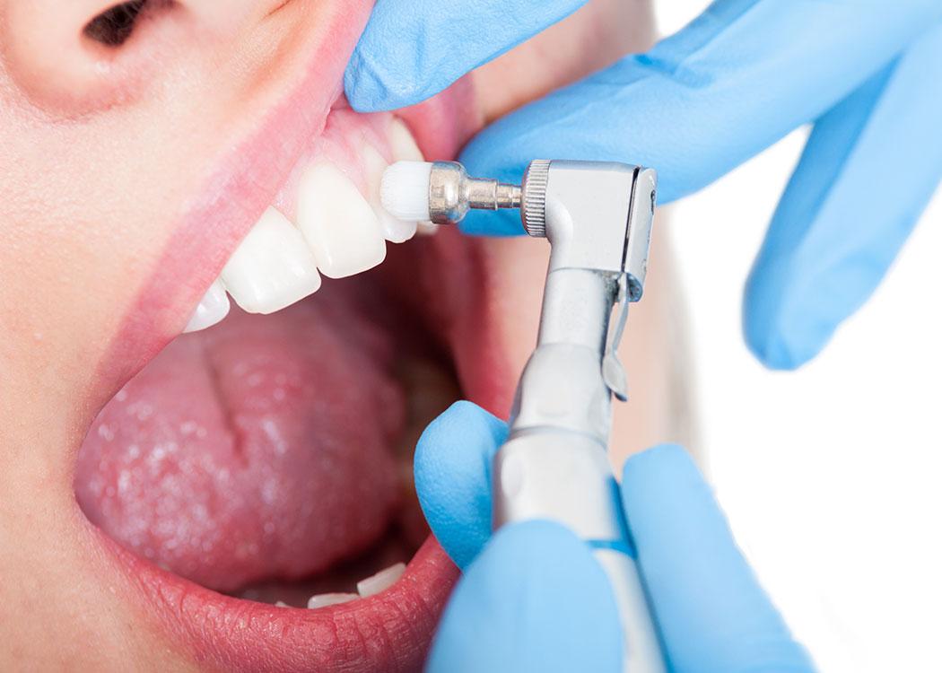 Kalkberg Zahnärzte Bad Segeberg Erwachsenen-Zahnheilkunde Zahnmedizin Vorsorge