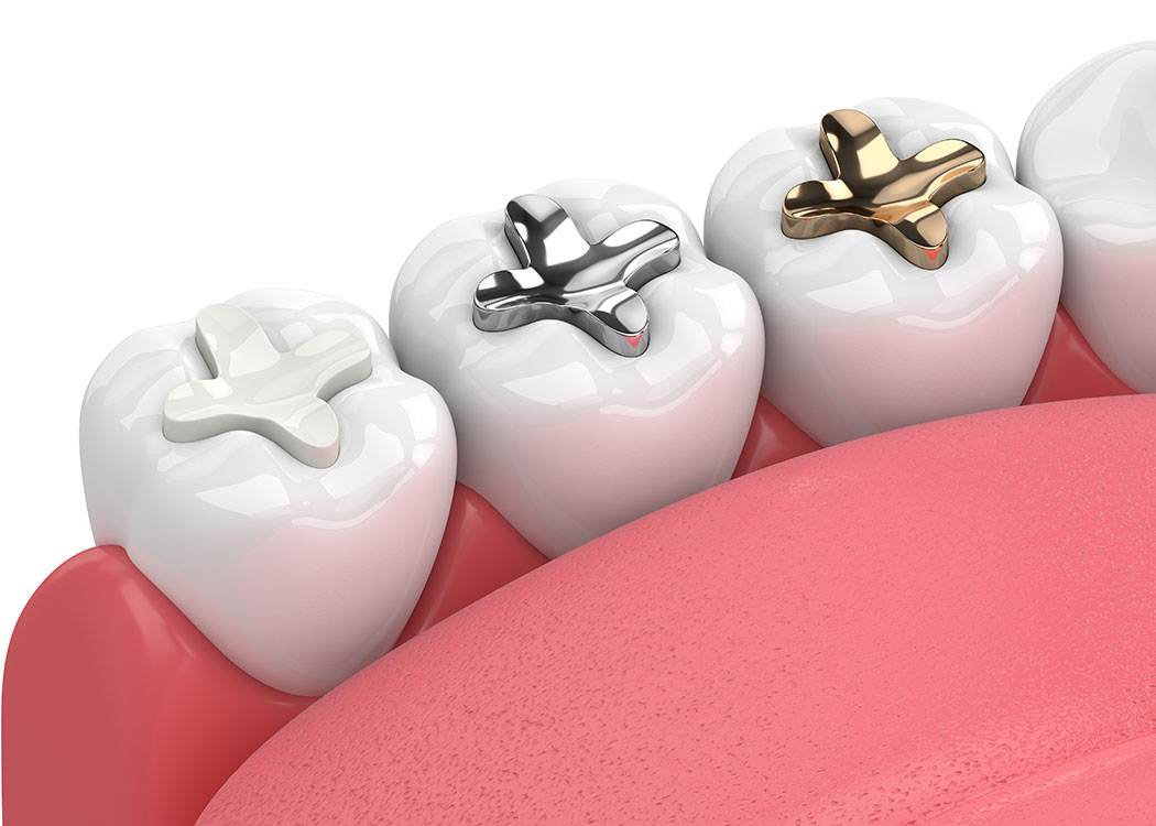 Kalkberg Zahnärzte Bad Segeberg Erwachsenen-Zahnheilkunde Zahnmedizin Zahnerhaltung