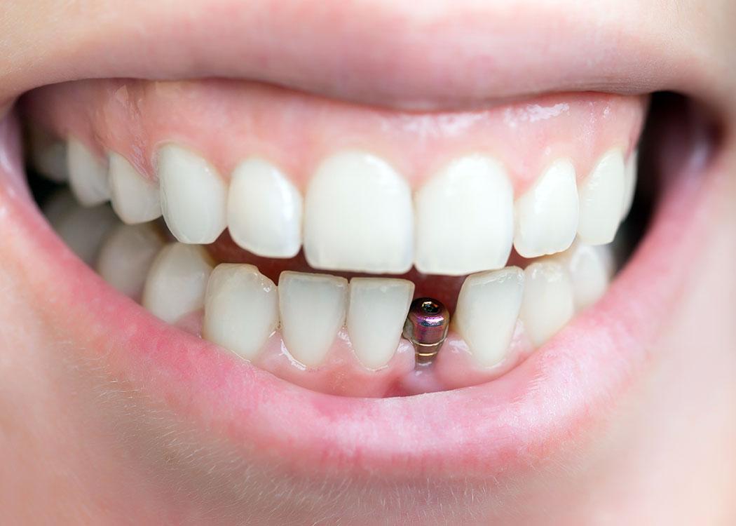 Kalkberg Zahnärzte Bad Segeberg Erwachsenen-Zahnheilkunde Zahnmedizin Zahnersatz